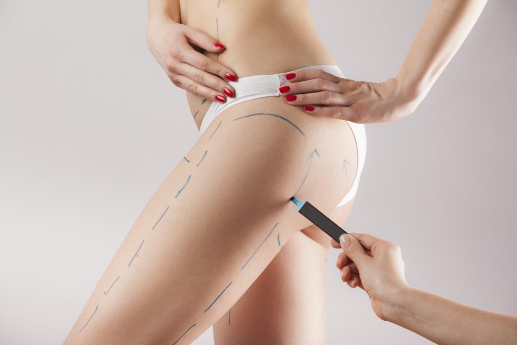 Plastische Chirurgie: Das sind die Schneitstrends in Zeiten von Corona. Die Top 5 der Schönheits-OP inkl. Brustvergrößerung, Lipofilling, Fettabsaugung und Behandlung mit Eigenfett auf marinajagemann.com