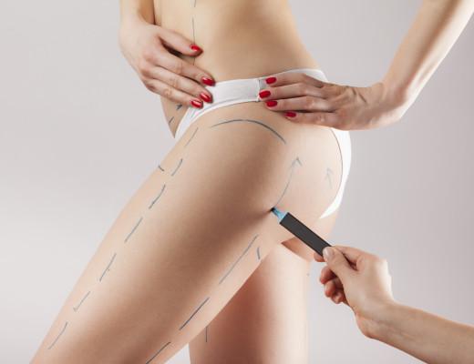 Die Top 5 der Schönheits-OP inkl. Brustvergrößerung, Lipofilling, Fettabsaugung und Behandlung mit Eigenfett auf marinajagemann.com