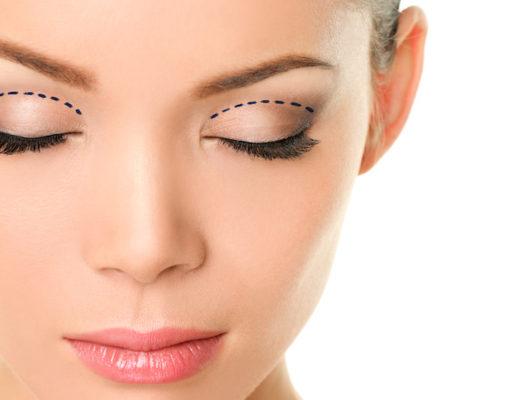 Knitterfältchen und Schlupflider adé! Die Palette der Treatments beim Beauty-Doc ist groß. Was hilft bei welchem Problem? Von Botox bis Oberlidstraffung