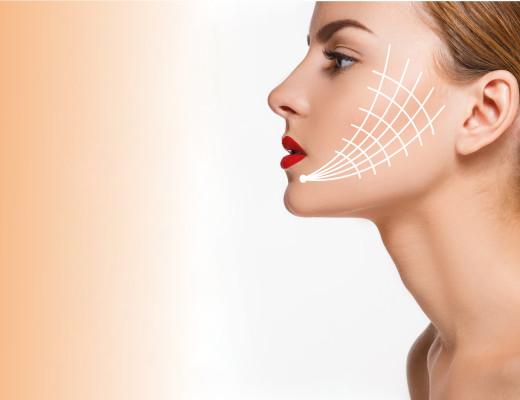 Es ist der neue Hype im Bereich der Gesichtsverjüngung: Fadenlifting. Das Versprechen ist groß, aber wieviel kann man wirklich von ihm erwarten?