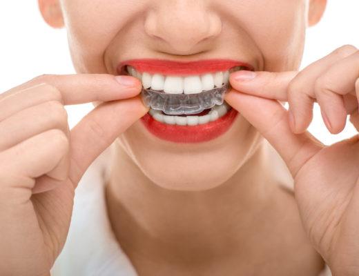 Wer mit einem schönen Lächeln punkten möchte, kann sich seine Zähne mit modernen Methoden quasi unsichtbar verschönern lassen.