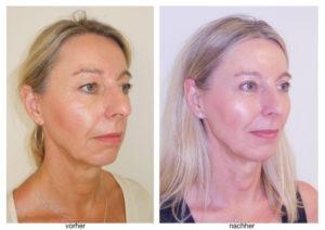 Verjüngen Lidstraffungen das Gesicht mit einem weitgehend risikofreien Eingriff? Was sind die Kosten und Risiken? Eine Patientengeschichte.