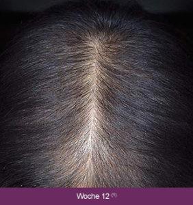 Minoxidil, Marina Jagemann, Haarausfall, feines Haar, dünnes Haar, Menopause, Wechseljahre, erblich bedingter Haarausfall,