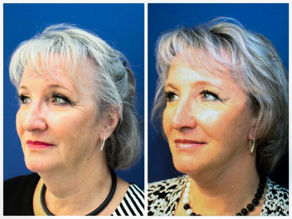 Facelifting Vorher und Nachher: Straffung des Kinns und Reduzierung der Wangenfalten.Nachdem Facelift ist eine deutliche Straffung der Kinn-, Wangen- und Augenpartie zu erkennen.