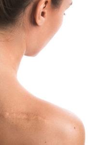 Narbenenfernung mit dem Dermaroller auf minimalinvasive Art