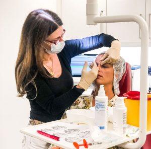 Behandlung der Nasolabialfalte mit Fillern