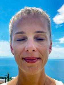 Junge Frau mit Pigmentflecken im Gesicht