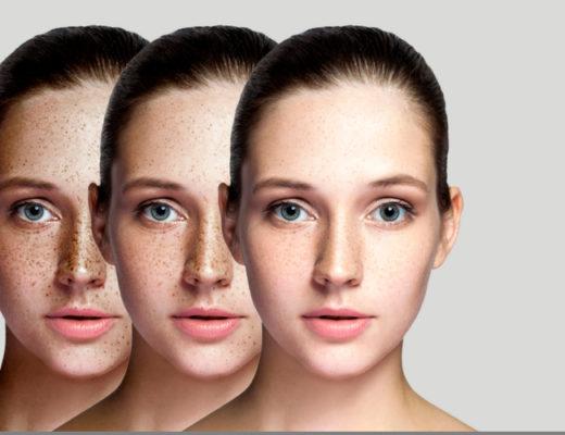 Drei junge Frauen mit Pigmentflecken im Gesicht