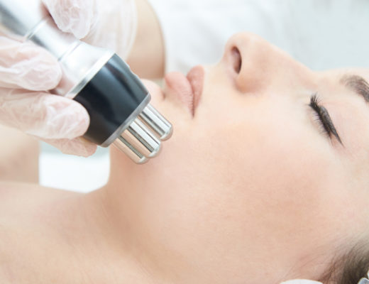 Laserbehandlung im Gesicht