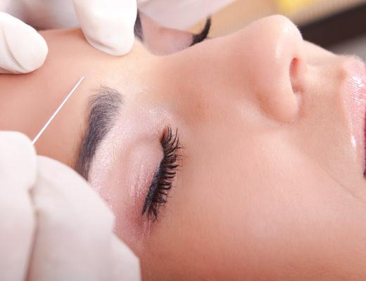 Injektion auf der Stirn einer Frau