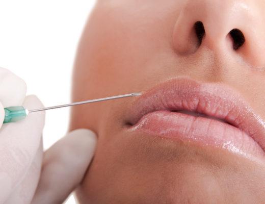Lippen mit Filler aufspritzen