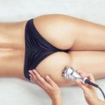 Körperstraffung und Fettabsaugung mit Radiofrequenz an einem Frauenkörper