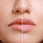 Lippen vorher nachher