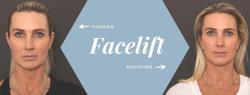 Faceliftung: Vorher & Nachher Vergleich