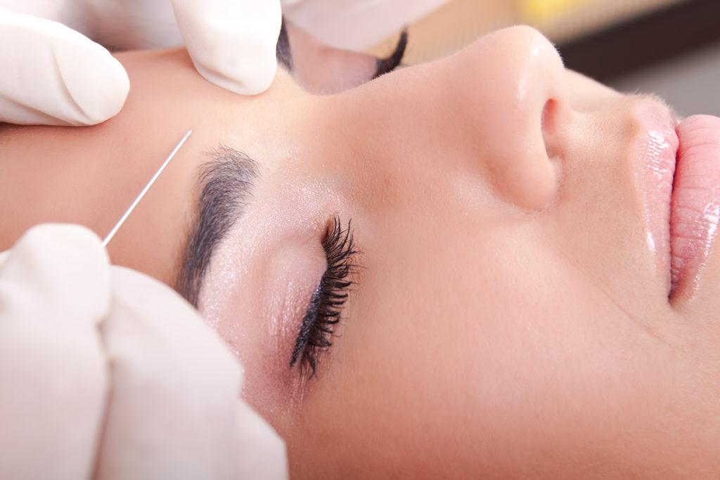 Frau bekommt eine Filler Injektion in die Stirn